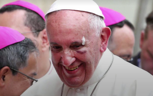Vatican: Pope Francis 'is fine' after hitting face on popemobile